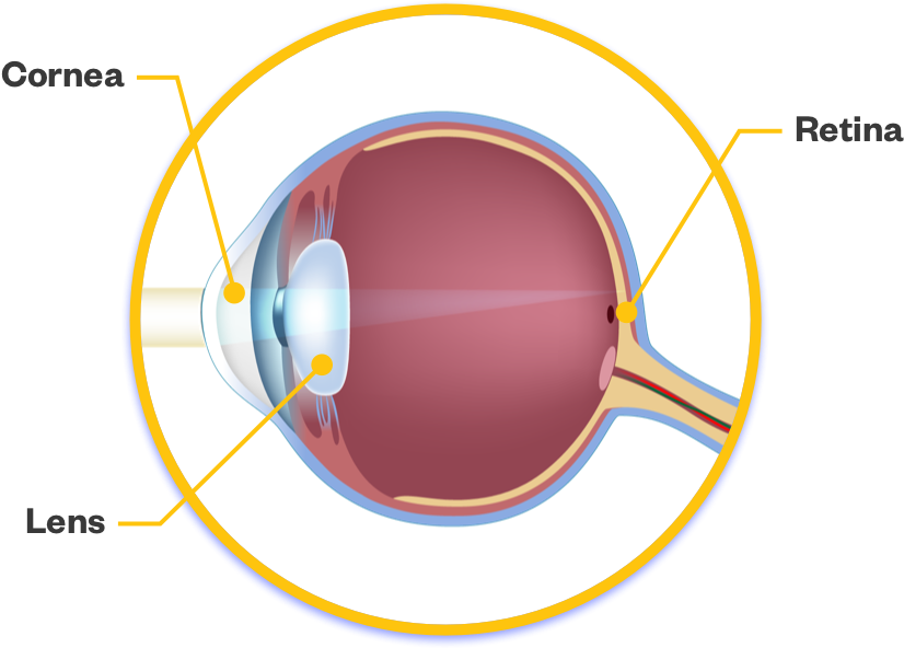 Eye without cataract
